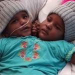 Screenshot-at-janv.-28-17-36-56-150x150 Séparées avec succès…Les sœurs siamoises Zainab et Jannat Rahman 16 ans après (18 Photos)