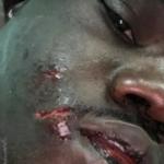 guin-thieus-150x150 La vidéo choquante du frère de MHD agressé par des policiers français avec un chien