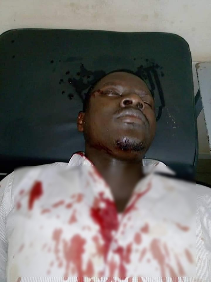 blesse-1 URGENT - Saint Louis : Une Caravane de Ousmane Sonko attaquée par des militants de L'APR