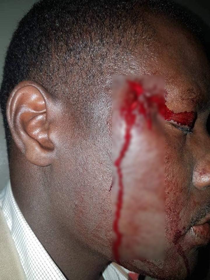 blesse-2 URGENT - Saint Louis : Une Caravane de Ousmane Sonko attaquée par des militants de L'APR