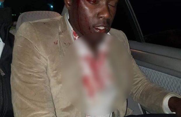 blesse-3-620x400 URGENT - Saint Louis : Une Caravane de Ousmane Sonko attaquée par des militants de L'APR